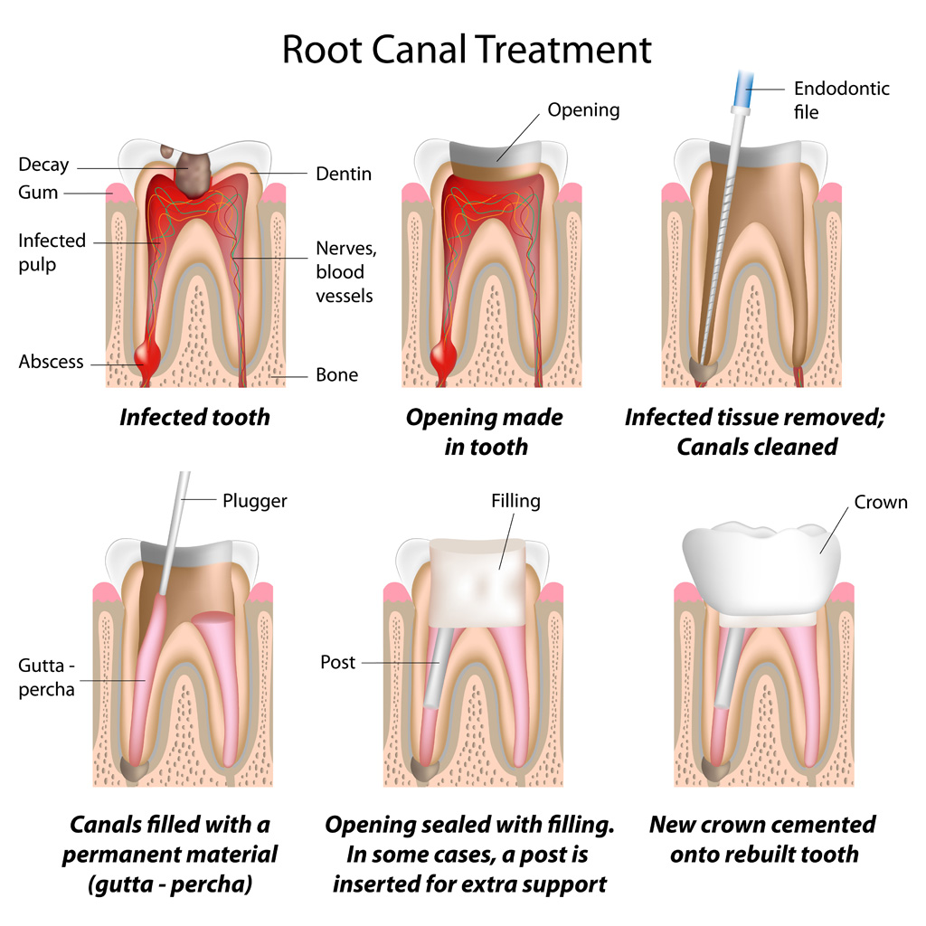 Root Canal Highres