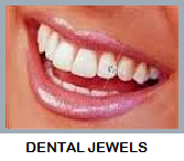 DENTAL JEWELS   Copy